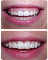 Dental Crown Lengthening