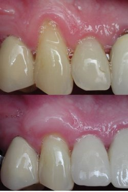 Gum Graft (Soft tissue graft)